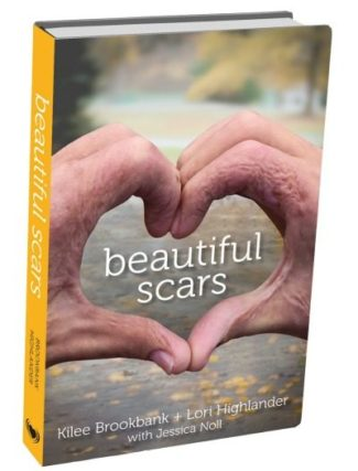 'Beautiful Scars' is the book telling the story of Kilee Brookbank, who was burned in a gas explosion